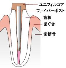 歯の根の治療後にはファイバーポストで歯根を補強